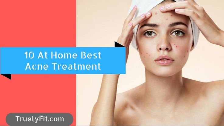We often Face Acne problems in our life and we wonder how to get rid of them should i use any medicine well maybe harsh chemicals will make it even worse