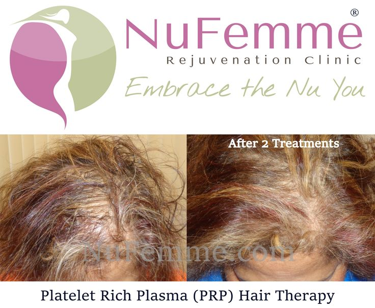 Platelet Rich Plasma (PRP) Hair Restoration Therapy. . 🌟Use Your Body's Own Plasma 🌟Fast Results 🌟Affordable and Cost Effective 🌟No Scarring  🌟No Medications . Schedule Your Consultation ☎ (414) 622-1223