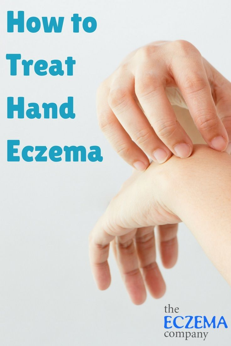 Allergic eczema: Causes, symptoms, and pictures