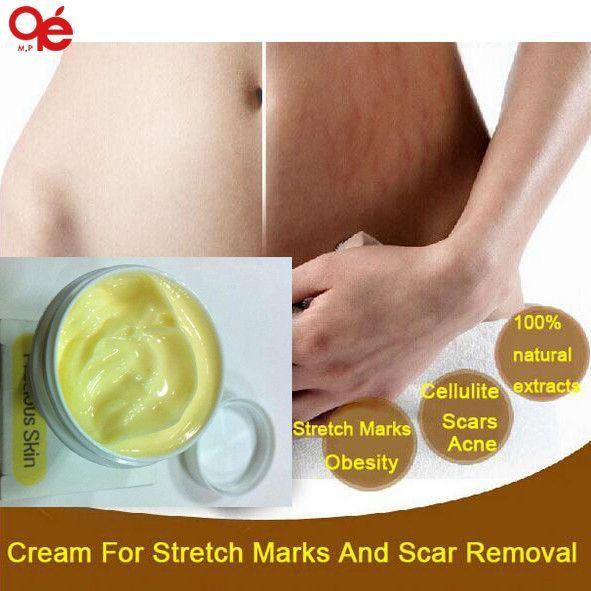 Stretch Marks Cream Scar Removal Maternity Skin Body Repair Cream Remove Scar Care