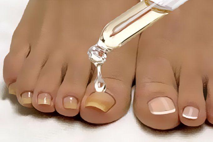medicina populară de la picioarele varicoase