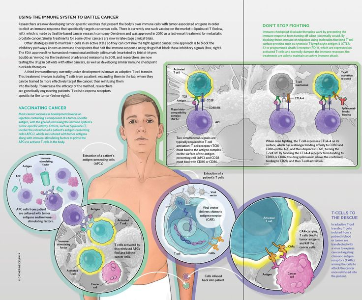 63 best a & p - chapter 12: lymphatic system and body defenses, Muscles