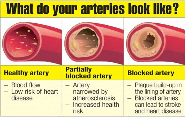 8 Foods That Could Help Unclog Your Arteries - Vegetarian Friend