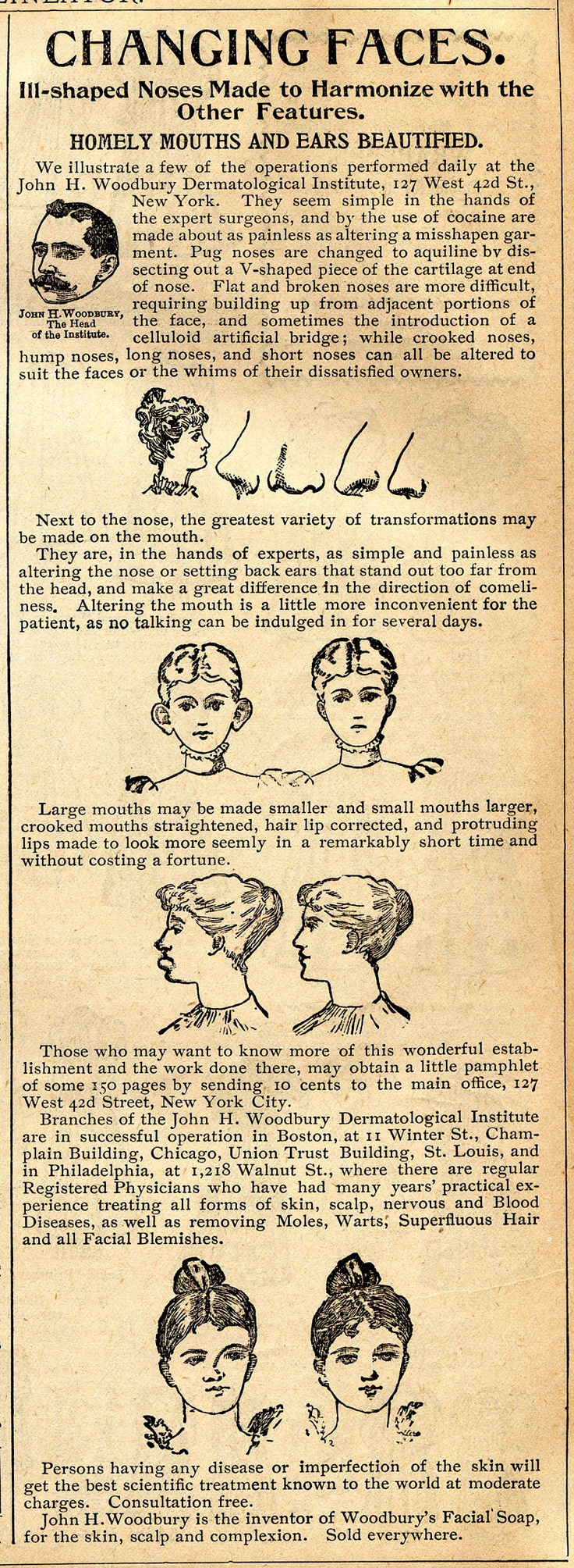 This advertisement from an 1895 Delineator shows how you can fix all your problem areas including nose jobs, ear pinning, lip enhancement and reductions, and a long list of dermatological corrections. All of these surgeries are made nearly painless with the copious amounts of cocaine given to the patients before and after surgery.