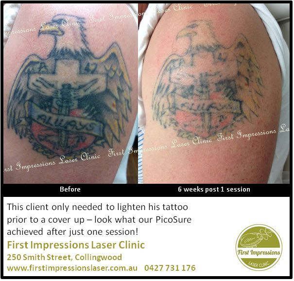 Tattoo Removal for a cover up is easy with our PicoSure Laser. This is after one treatment.  #tattooremoval, #lasertattooremoval, #tattoo, #tattooregret, #tattooremorse, #fashion, #picosurelaser, #picosure, #beauty, #melbourne