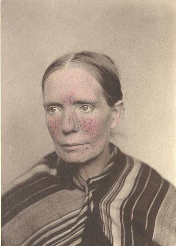 Margaret K., age 45, Ireland: Rosacea 1880-1885 (ca)