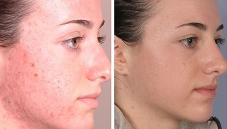 how much does a chemical peel cost