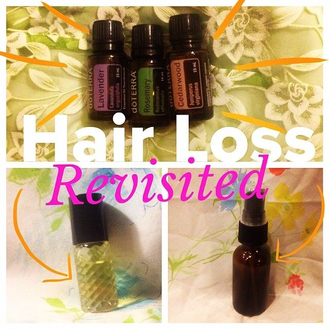 Natural Hair Restoration With Doterra Oils Roller For Men