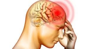There are common root causes and Sinus #Headache #Symptoms that can be looked into to help know the best course of medical relief and treatment. These common causes contribute to a progressive advance of recurrence if not addressed at the earliest stages of the #pain. http://migraineheadachesymptoms.net/