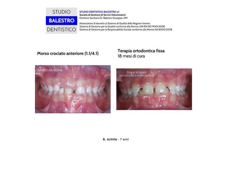 Casi clinici ortodontici Morso crociato anteriore http://www.studiodentisticobalestro.com/2014/09/morso-crociato-anteriore.html