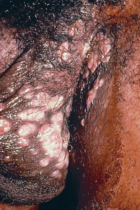 Moist Plaques Of Condyloma Lata Dermatology Images
