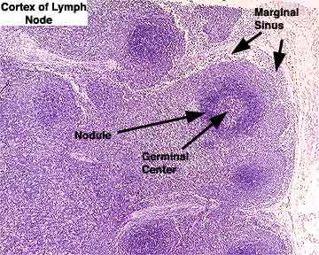lymph node labeled - germinal center, marginal sinus, nodule