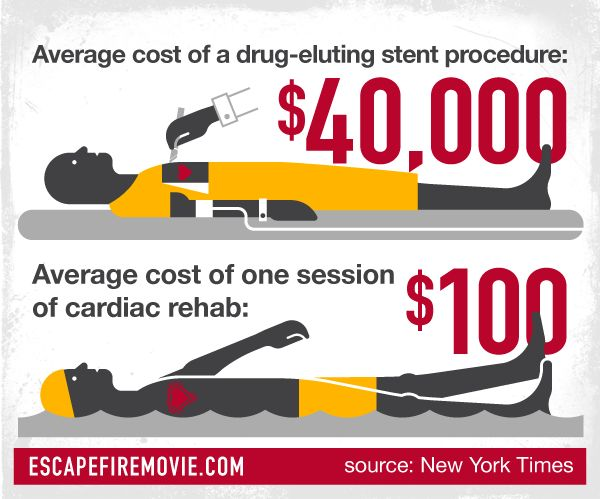 The average cost of a drug-eluting stent procedure is $40,000. Average cost of one session of cardiac rehab: $100.