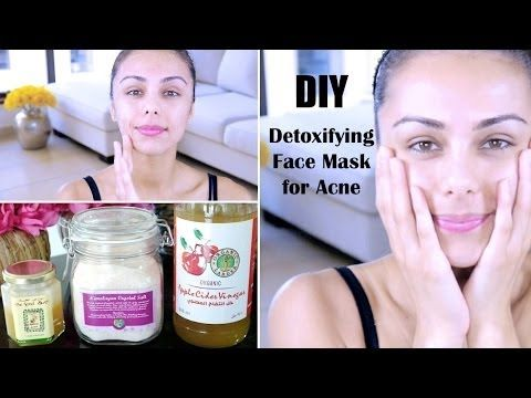 DIY Detoxifying Face Mask! ♥ (For Acne, Skin Discoloration, Scars) - YouTube