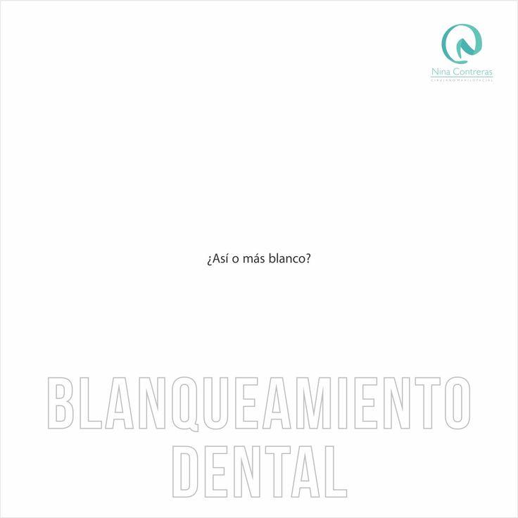 Blanqueamiento Dental - Vuelve a Sonreír!  Agenda tu cita: 6571629 - WhatsApp 300 8934528 http://ninacontrerascmf.com/location/ #blancos #dientes #sonrisa #blanqueamiento