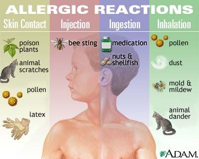 http://esromart.hubpages.com/hub/Treatment-for-Allergies-Eliminate-Allergy-Symptoms-from-Your-Life