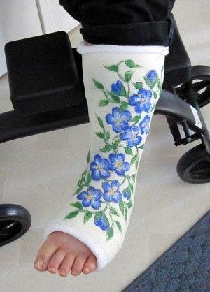 20 best images about cast decorating on pinterest tissue for Arm cast decoration ideas