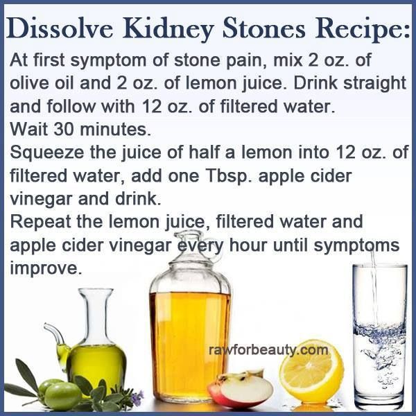 Natural Kidney Stone Removal Treatment