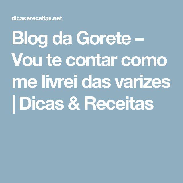 Blog da Gorete – Vou te contar como me livrei das varizes   Dicas & Receitas