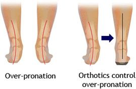 Orthotics by Footminders®-Effective Relief for Plantar Fasciitis -Flat Feet-Ball of Foot Pain