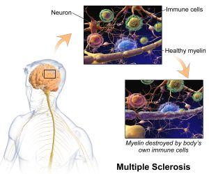 Qué es la Esclerosis Múltiple?