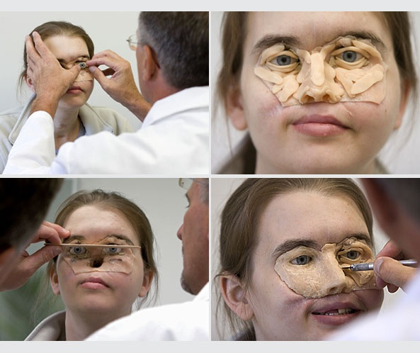 disguise facial injury