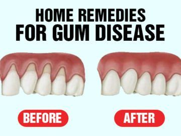 Save your gums and teeth from diseases