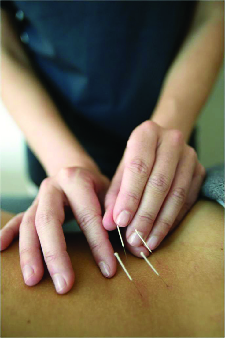 Acupuncture For Copd