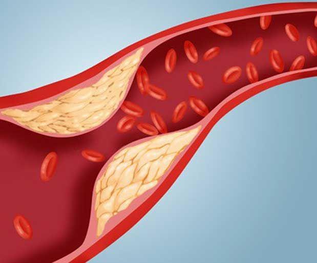 Arterlerin Tıkanması Önlemek İçin 5 Besin ÖnerisiEğer yüksek tansiyonunuz var ise iltihaplanma kolesterole neden olup bu da kan damarlarının duvarlarına kolesterolün yapışmasına ve plak oluşumuna neden olur. Aşağıdaki besinler tıkanmayı önlemeye yardımcıdır. Yazının Devamı: Arterlerin Tıkanması Önlemek İçin 5 Besin Önerisi | Bitkiblog.com Follow us: @bitkiblog on Twitter | Bitkiblog on Facebook