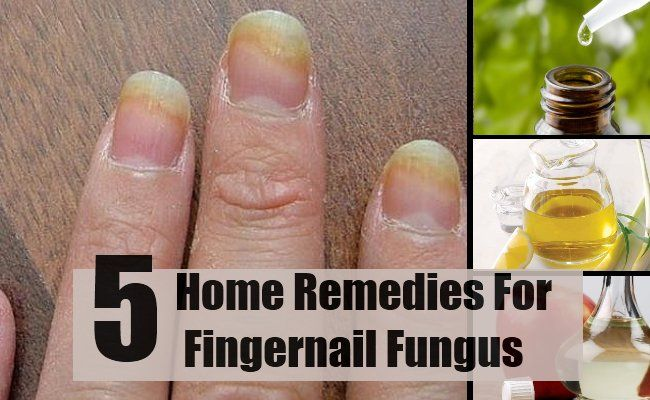 Natural Ways To Get Rid Of Fungal Nail Infections