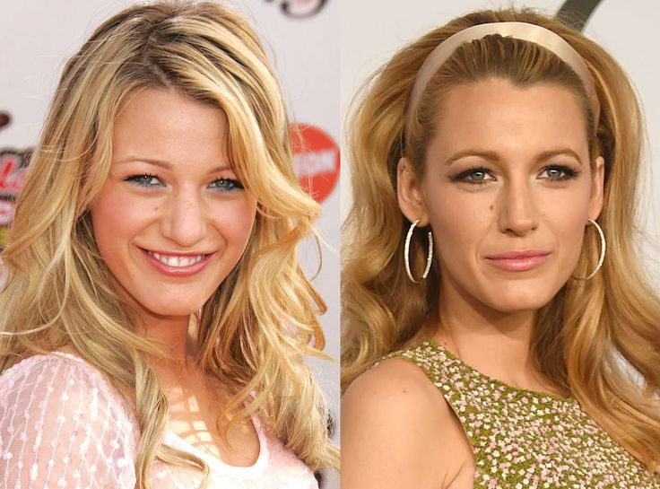 Blake lively then and now celebrity plastic surgery