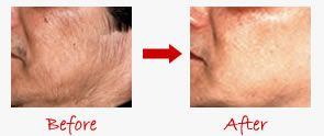 Get Rid Unwanted Facial Hair Permanently - Homemade Natural Removal Treatment - Stop & Reduce Women Facial Hair