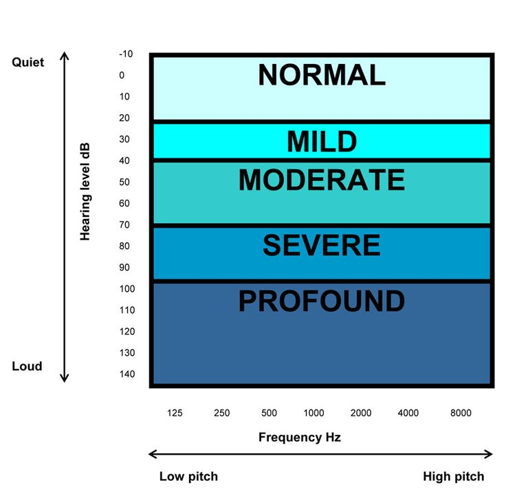 Different severities of hearing loss plotted on an audiogram: Hearing Tests and Audiograms