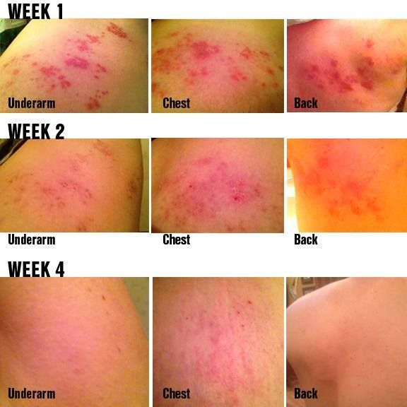 """Testimony from a Rodan + Fields Customer: """"Thank you so much for suggesting I use the SOOTHE Regimen to alleviate my outbreak of Shingles. As you can see I had a pretty bad case. Soothe helped relieve the incredible burning and itching that the Shingles caused, and also helped heal the lesions. I hope I never get Shingles again, but if I do, the one product I will use is SOOTHE!"""" ~ Annie (Customer)  www.nreiser.myrandf.com"""