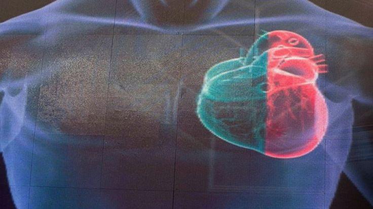 Identificada por primera vez una mutación genética que causa prolapso de la válvula mitral