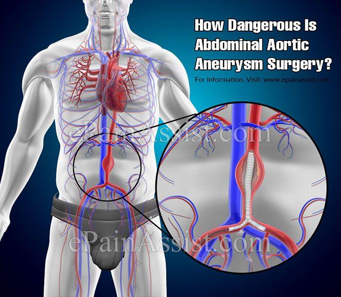 How Dangerous Is Abdominal Aortic Aneurysm Surgery?