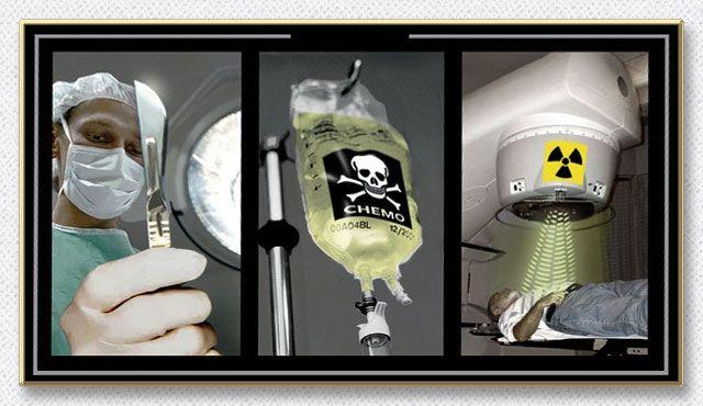 癌治療のおぞましい実態、癌は復活細胞である、癌の転移が起こりうる原理、癌治療は免疫の改善と向上が鍵、癌の自然退縮…