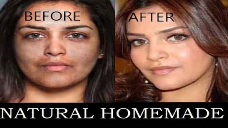 skin lightening home remediesAmazing Skin Lightening Homemade Formula | Get Whiten Skin From Dark In ...