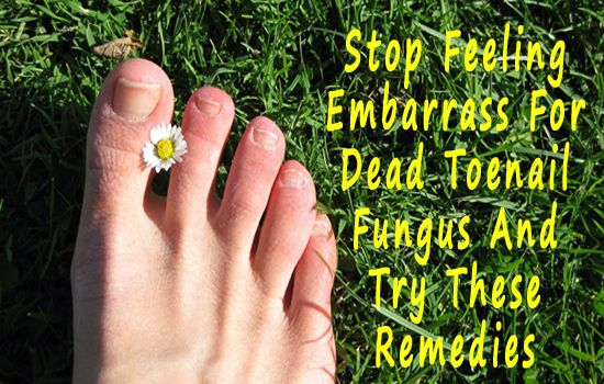 Stop Feeling Embarrass For Dead Toenail Fungus And Try These Remedies  Now stop feeling embarrassed and try these remedies for dead toenail fungus – remedy 1:  tea tree oil/orange oil…remedy 3 – baking soda and more at:http://www.curetoenailfungus.info/blog/is-your-dead-toenail-making-you-feel-embarrass