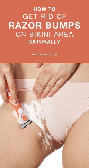 9 Easy Ways to Get Rid of Razor Bumps on Bikini Area Naturally
