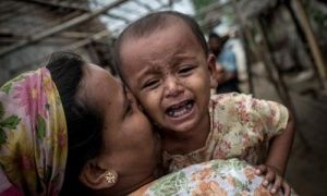 A young Rohingya girl suffers from infected heat rash on her face and body in Sittwe, Burma.