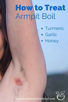 Get Rid of The Boil Under Armpit and Relieve Yourself from the Pain