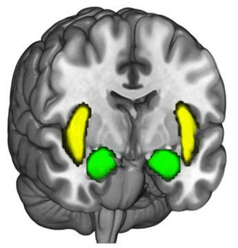 When people's political beliefs are challenged, their brains become active in areas that govern personal identity and emotional responses to threats, neuroscientists have found.