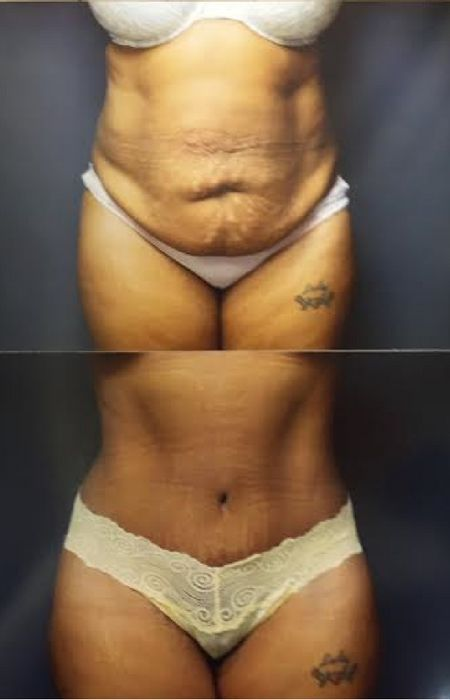Have you thought about having Abdominoplasty, AKA a tummy tuck, since having your twinnies? Read this for some useful information about the surgery.