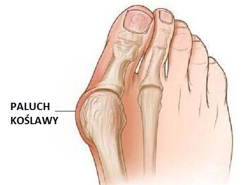 Paluch koślawy zwany też haluksem, to rozszerzenie stawu u podstawy dużego palca u stopy, które powstaje w czasie przemieszczenia się kości lub tkanki..