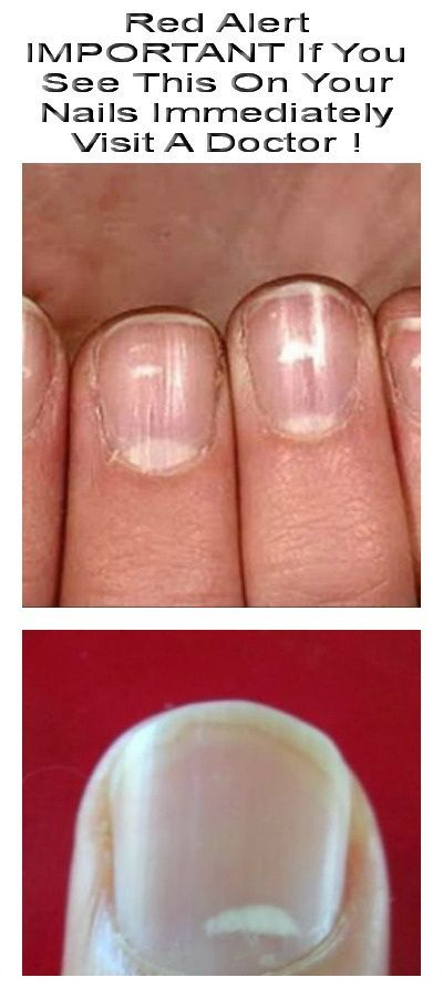 Red Alert IMPORTANT If You See This On Your Nails Immediately Visit A Doctor !
