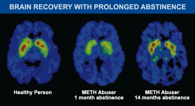 Some Brain Recovery Is Possible for Meth Users After Detox