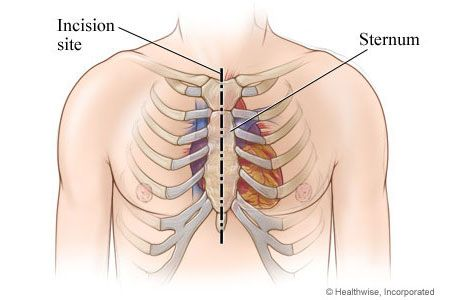Chest incision site for aortic valve replacement surgery