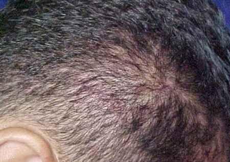 Las espinillas en la cabeza aparecen cuando los poros del cuero cabelludo se bloquean. Te proporcionamos varios tips y 3 remedios naturales para quitarlas.
