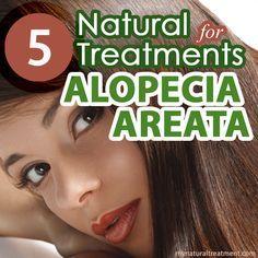 Natural treatment for alopecia areata #alopeciatreatment #alopeciaareata #naturaltreatment